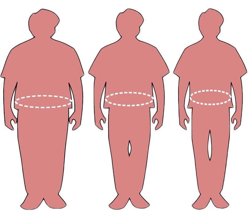 venezuela pierderea în greutate